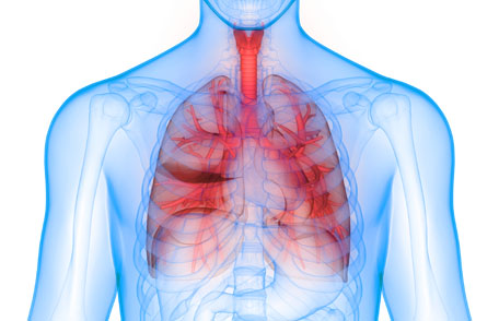 COPD lungs inflamed